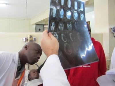 Neurosurgery in Uganda