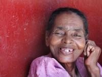 Poor_Teeth_Malagasi_Woman