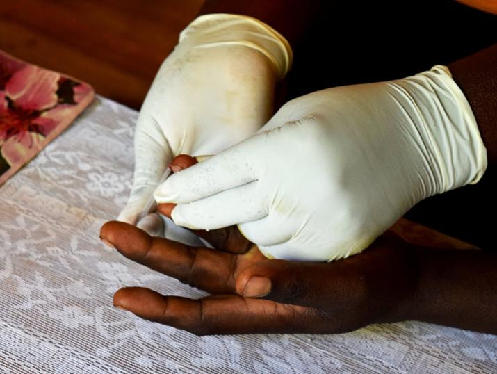 Rapid Diagnostic Test for Malaria